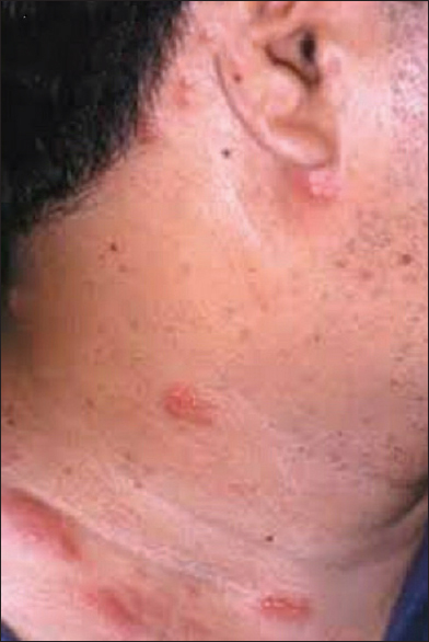 Figure 1: Zosteriform rash on right side of neck and upper chest with dermatomal pattern